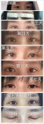 武汉协和医院孙家明教授做的双眼皮手术