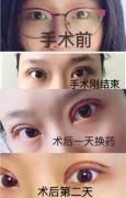 上海九院王梓医生处做的普通双眼皮手术案例