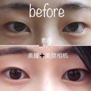 杭州117医院陆新医生做的全切双眼皮日记